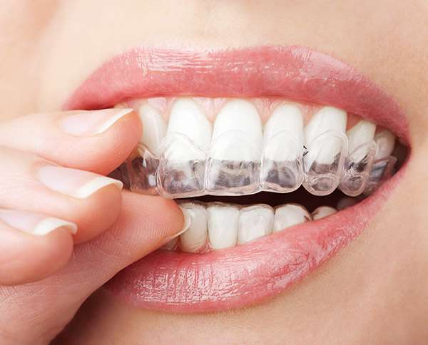 Get Help Choosing Between Invisalign And Braces To Straighten Teeth